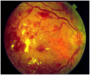 diabetic retinopathy - eyes